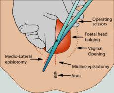 episitomy